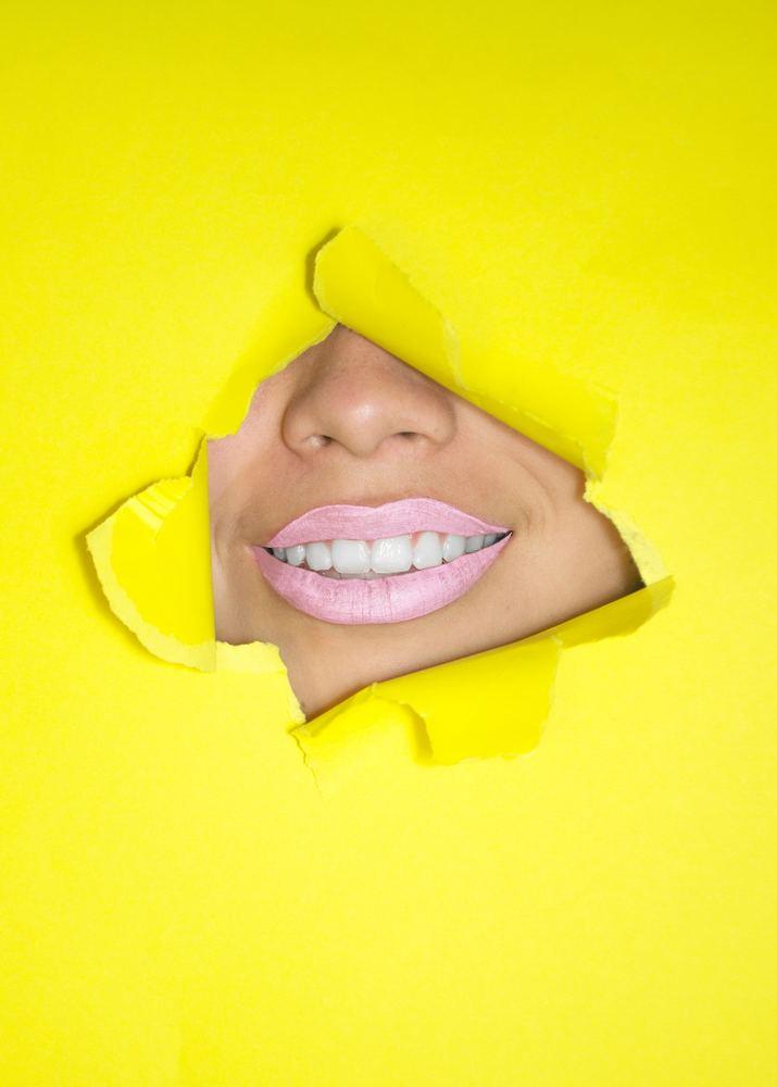 Tandreglering för ett perfekt leende